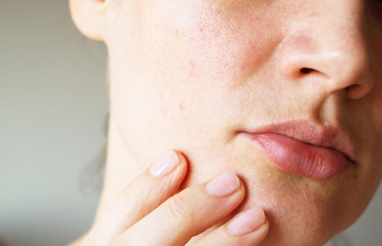 肌荒れはビタミンB不足が原因!不足すると髪のトラブル・ニキビ・皮膚炎に | 化粧品のおすすめ商品・情報まとめサイトlentement(ロントゥモン)